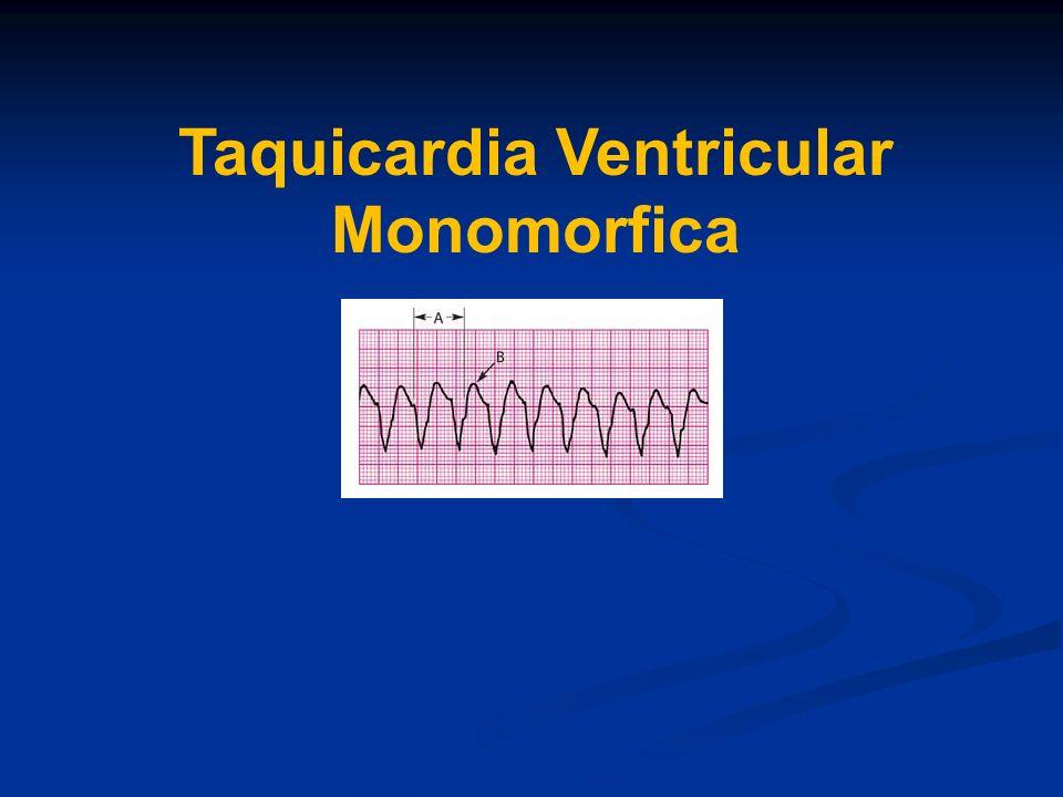 Taquicardia Ventricular Monomorfica