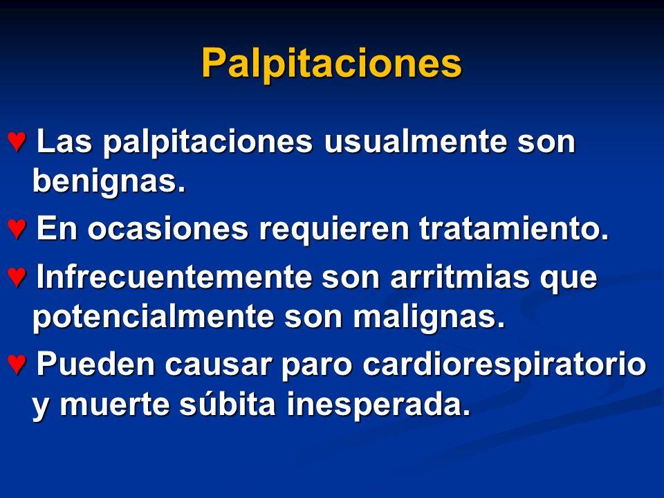 Palpitaciones Las palpitaciones usualmente son benignas. Las palpitaciones usualmente son benignas. En ocasiones requieren tratamiento. En ocasiones r