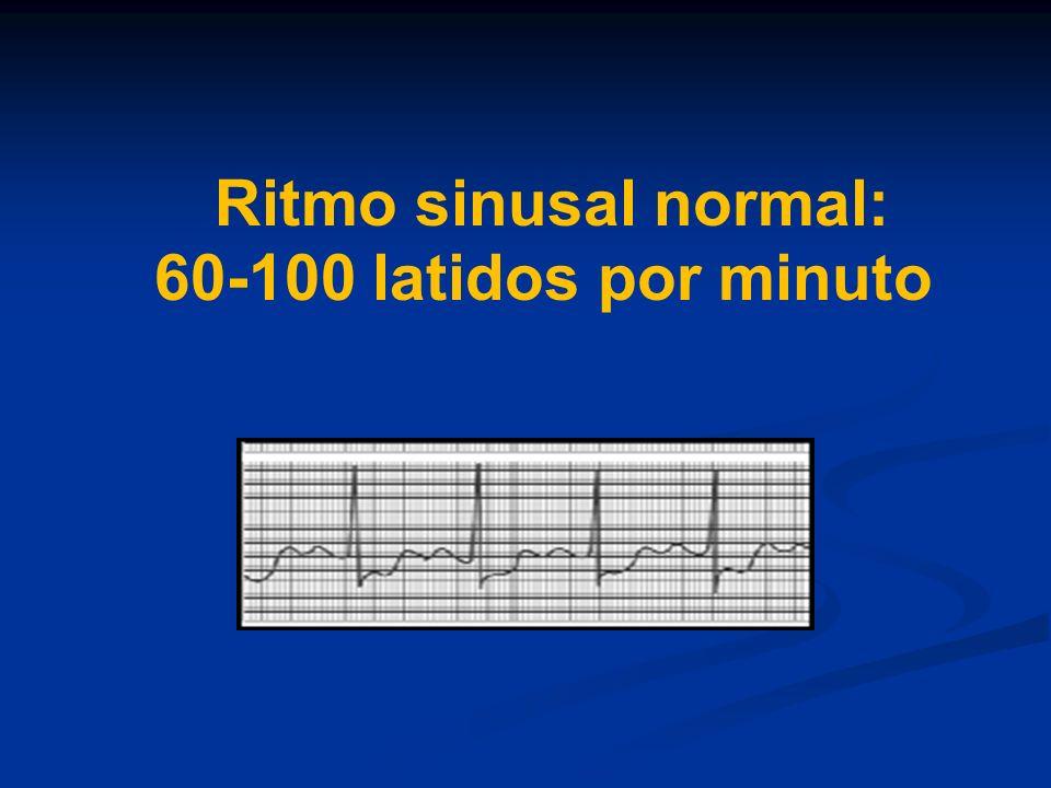 Taquicardia ventricular Polimorfica