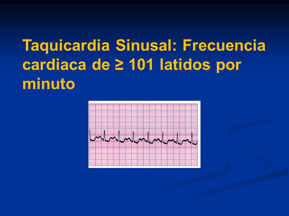 Rate Control During Atrial Fibrillation Guidelines Identify inadequate rate control – Resting heart rate >80 bpm – Holter monitor - any rate >130 or average rate >90 bpm during daily activity – Exercise test – Bruce protocol > 120 bpm in stage 1 Use cocktail of digoxin/B blockers/Ca channel blockers Use His Ablation /Pacemaker if drug therapy ineffective or not tolerated – Remember LBBB with RV pacing Consider Primary Atrial Fibrillation Ablation especially patients with frequent A Fib paroxysm