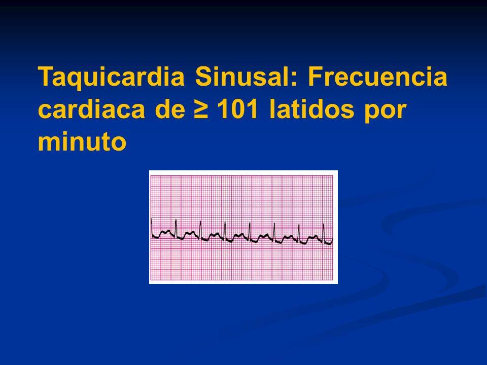 Taquicardia Sinusal: Frecuencia cardiaca de 101 latidos por minuto