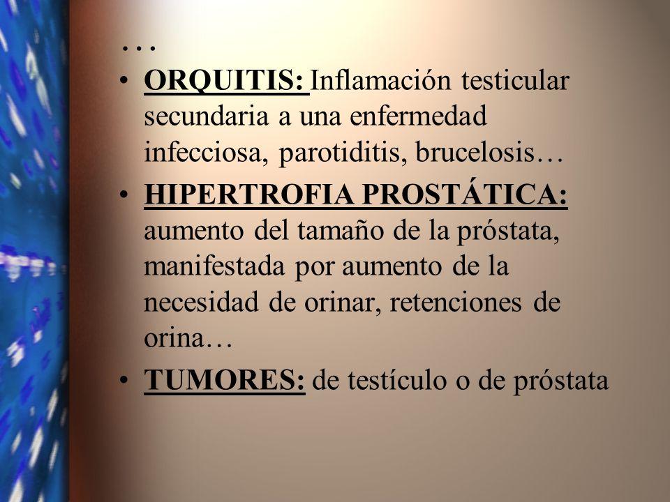 … ORQUITIS: Inflamación testicular secundaria a una enfermedad infecciosa, parotiditis, brucelosis… HIPERTROFIA PROSTÁTICA: aumento del tamaño de la p