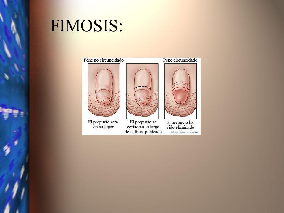 EMBARAZO ECTÓPICO Implantación del huevo fecundado fuera del útero.