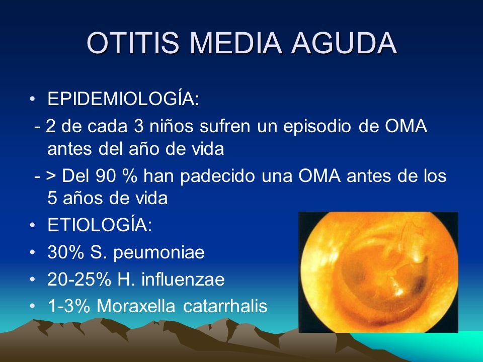 OTITIS MEDIA AGUDA EPIDEMIOLOGÍA: - 2 de cada 3 niños sufren un episodio de OMA antes del año de vida - > Del 90 % han padecido una OMA antes de los 5