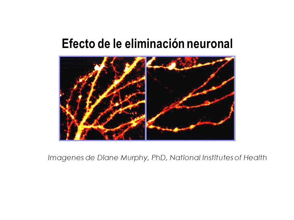 Imagenes de Diane Murphy, PhD, National Institutes of Health Efecto de le eliminación neuronal