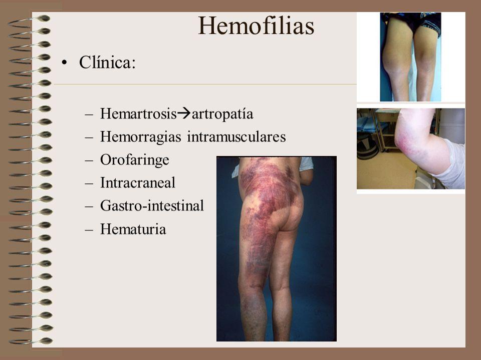 Hemofilias Clínica: –Hemartrosis artropatía –Hemorragias intramusculares –Orofaringe –Intracraneal –Gastro-intestinal –Hematuria