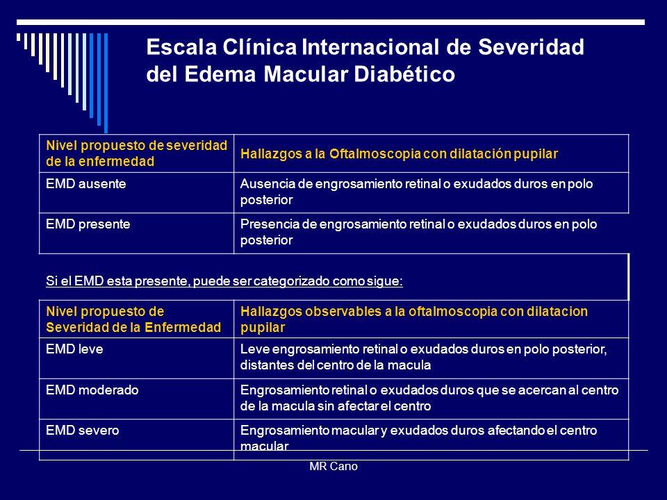 MR Cano Nivel propuesto de severidad de la enfermedad Hallazgos a la Oftalmoscopia con dilatación pupilar EMD ausenteAusencia de engrosamiento retinal