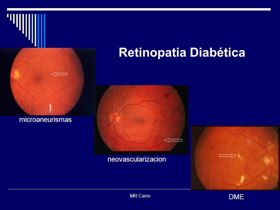 MR Cano Retinopatia Diabética microaneurismas neovascularizacion DME