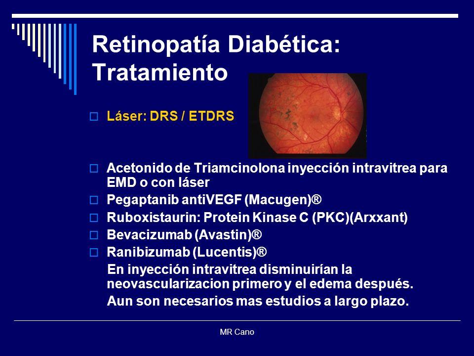 MR Cano Retinopatía Diabética: Tratamiento Láser: DRS / ETDRS Acetonido de Triamcinolona inyección intravitrea para EMD o con láser Pegaptanib antiVEG