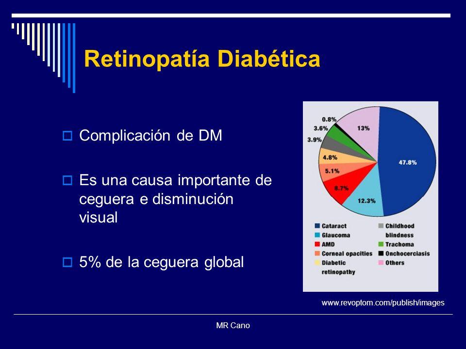 MR Cano Complicación de DM Es una causa importante de ceguera e disminución visual 5% de la ceguera global Retinopatía Diabética www.revoptom.com/publ