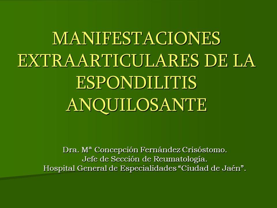 MANIFESTACIONES EXTRAARTICULARES DE LA ESPONDILITIS ANQUILOSANTE Dra. Mª Concepción Fernández Crisóstomo. Jefe de Sección de Reumatología. Hospital Ge