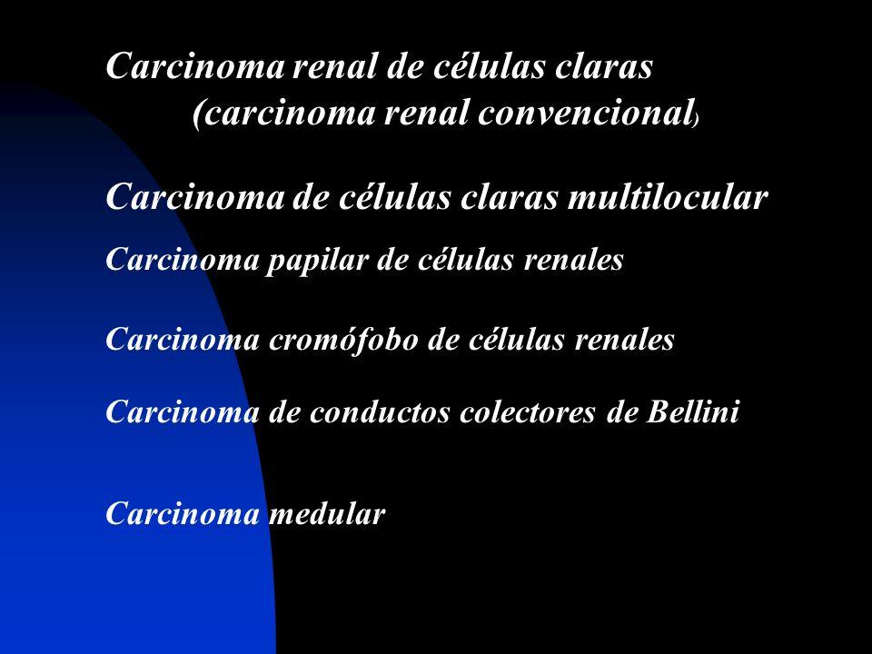 Carcinoma renal de células claras (carcinoma renal convencional ) Carcinoma de células claras multilocular Carcinoma papilar de células renales Carcin