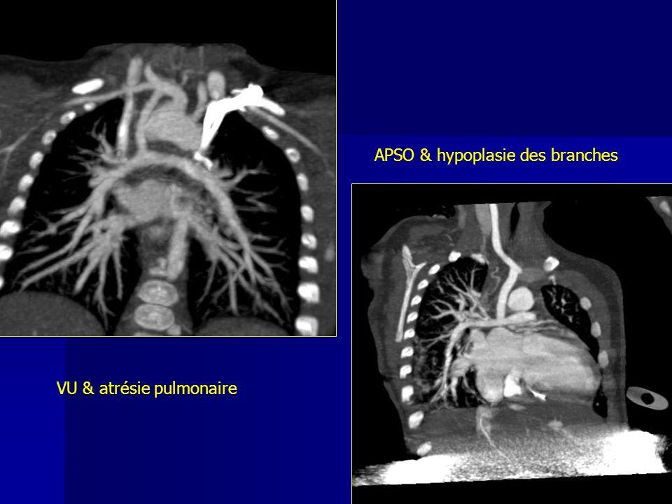APSO & hypoplasie des branches VU & atrésie pulmonaire