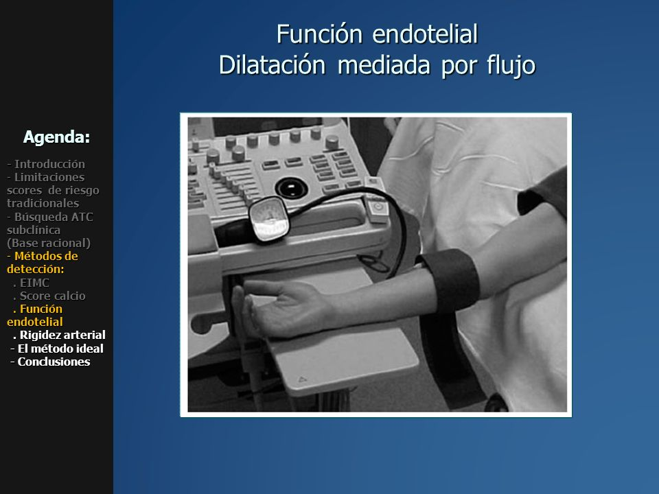 Función endotelial Dilatación mediada por flujo Agenda: - Introducción - Limitaciones scores de riesgo tradicionales - Búsqueda ATC subclínica (Base r