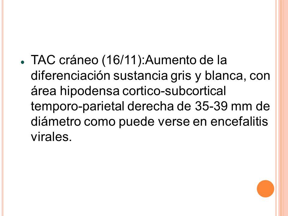 TAC cráneo (16/11):Aumento de la diferenciación sustancia gris y blanca, con área hipodensa cortico-subcortical temporo-parietal derecha de 35-39 mm d