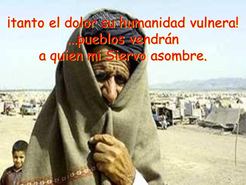 ¡tanto el dolor su humanidad vulnera!...pueblos vendrán a quien mi Siervo asombre.