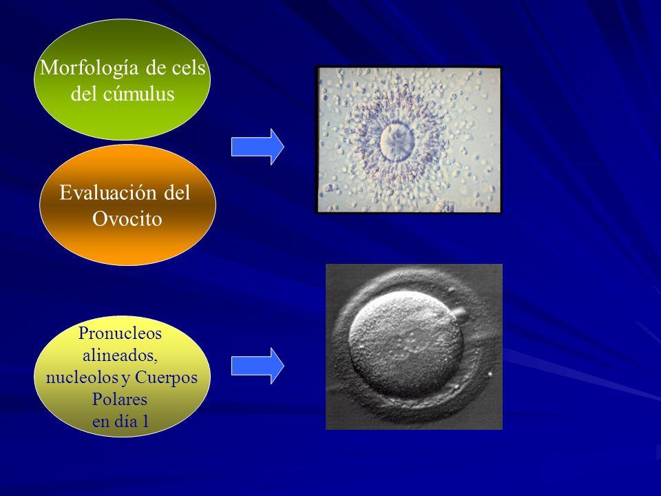 Procedimiento Ciclo de tratamiento Aspiración de todos los óvulos FIV/ICSI. Criopreservación Transferencia de embriones de mejor calidad según criteri