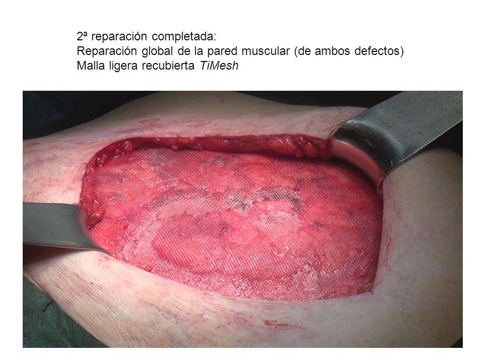 2ª reparación completada: Reparación global de la pared muscular (de ambos defectos) Malla ligera recubierta TiMesh