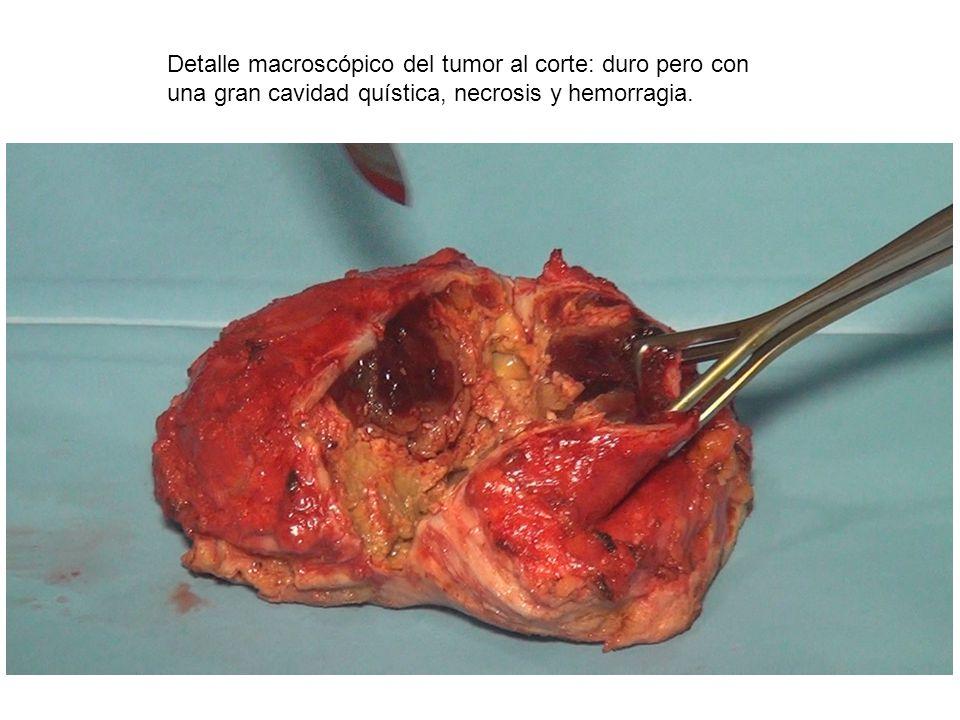 Detalle macroscópico del tumor al corte: duro pero con una gran cavidad quística, necrosis y hemorragia.