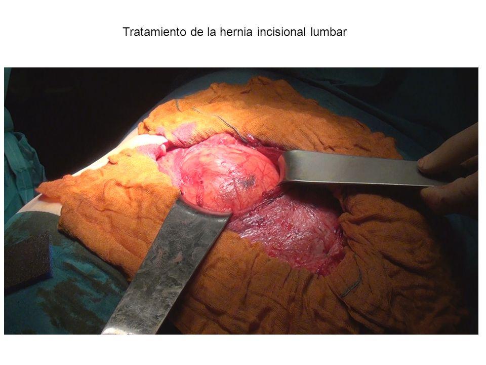 Tratamiento de la hernia incisional lumbar