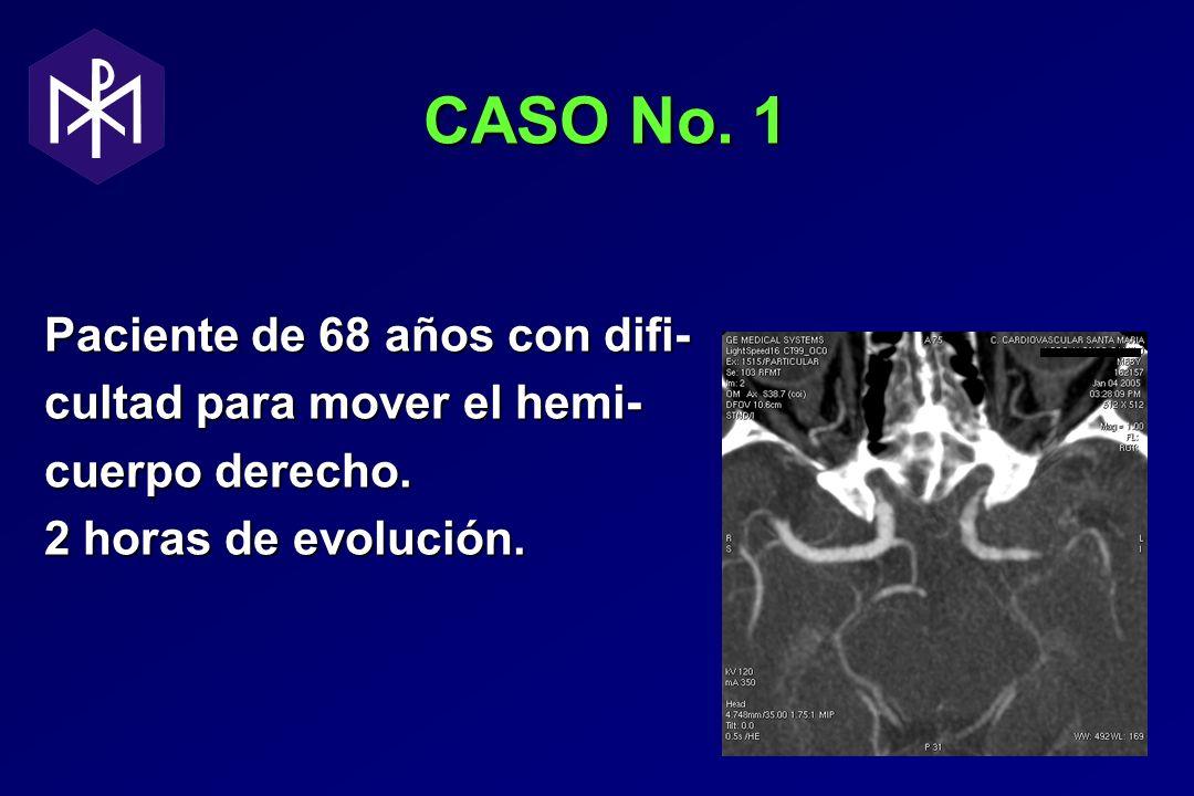 CASO No. 1 CASO No. 1 Paciente de 68 años con difi- cultad para mover el hemi- cuerpo derecho. 2 horas de evolución.