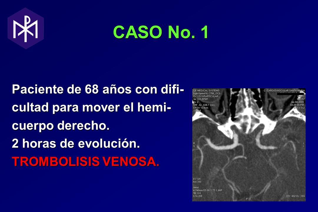 CASO No. 1 CASO No. 1 Paciente de 68 años con difi- cultad para mover el hemi- cuerpo derecho. 2 horas de evolución. TROMBOLISIS VENOSA.