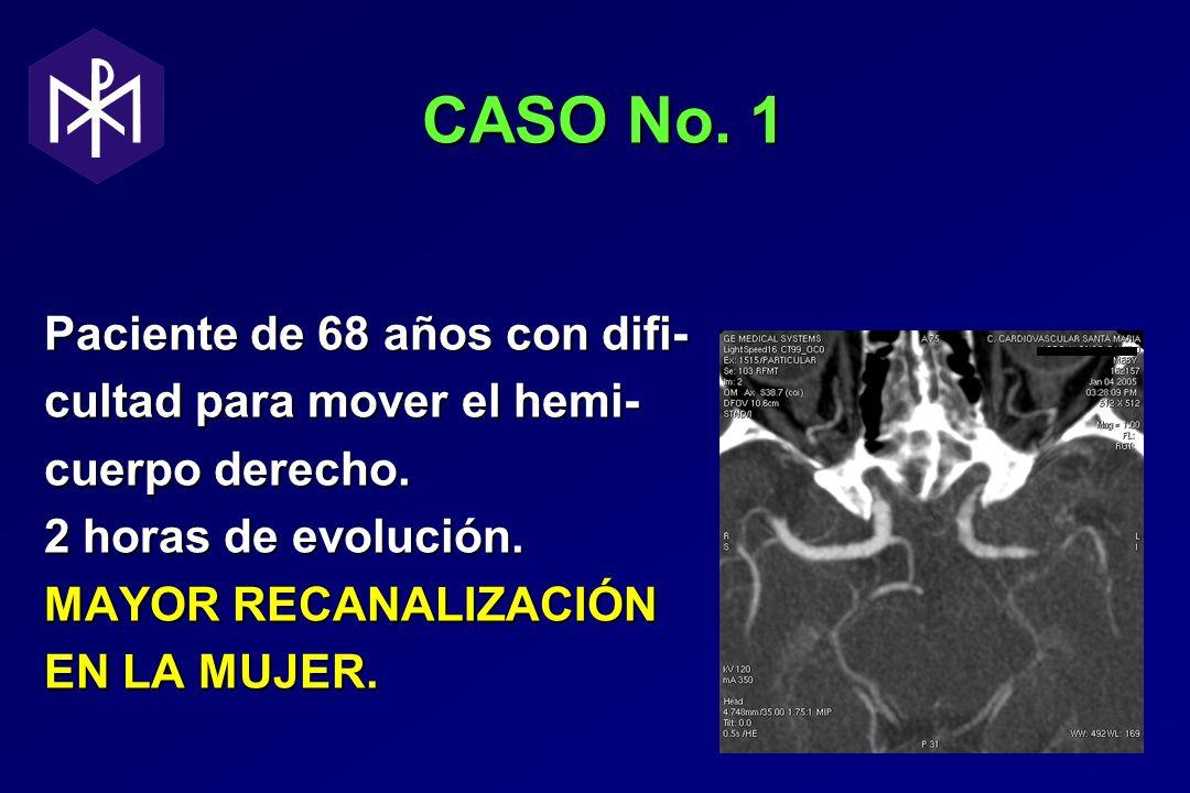 CASO No. 1 CASO No. 1 Paciente de 68 años con difi- cultad para mover el hemi- cuerpo derecho. 2 horas de evolución. MAYOR RECANALIZACIÓN EN LA MUJER.