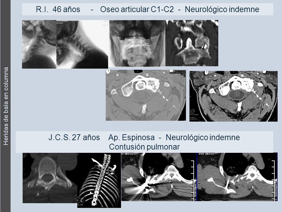 Heridas de bala en columna R.I. 46 años - Oseo articular C1-C2 - Neurológico indemne J.C.S.