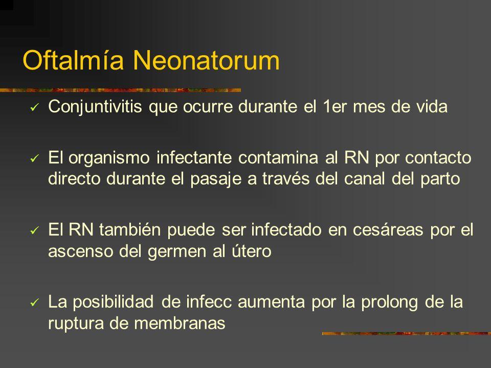 Oftalmía Neonatorum Conjuntivitis que ocurre durante el 1er mes de vida El organismo infectante contamina al RN por contacto directo durante el pasaje