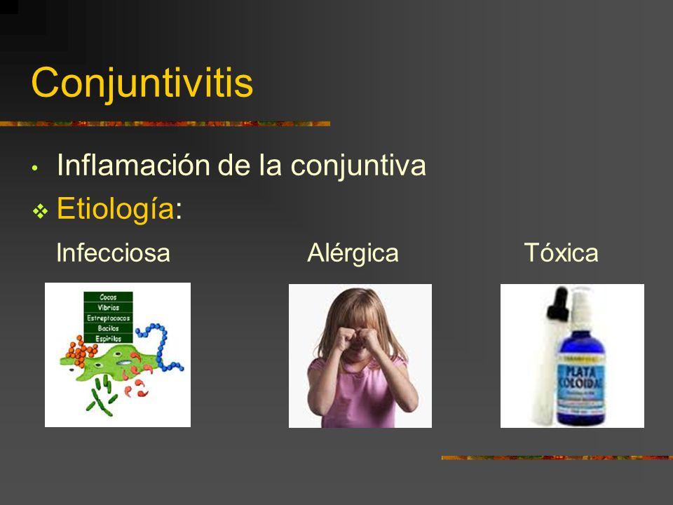 Conjuntivitis Inflamación de la conjuntiva Etiología: Infecciosa Alérgica Tóxica