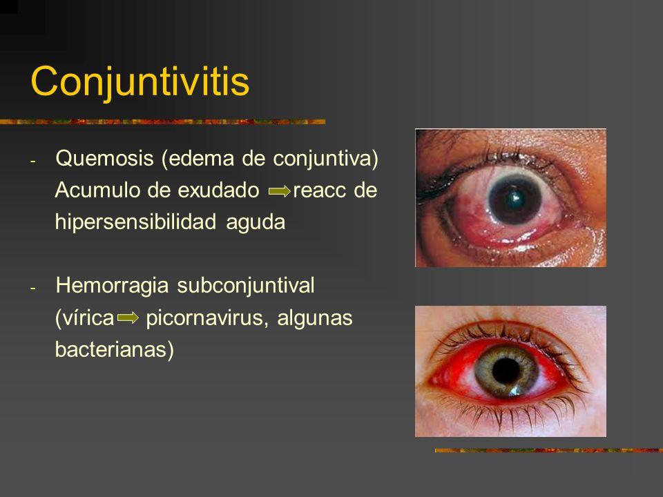 Conjuntivitis - Quemosis (edema de conjuntiva) Acumulo de exudado reacc de hipersensibilidad aguda - Hemorragia subconjuntival (vírica picornavirus, a