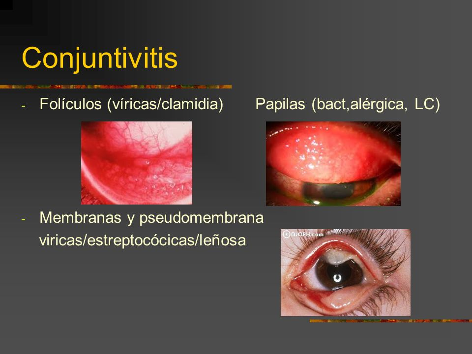 Conjuntivitis Infecciosa Diagnosis and management of pediatric conjunctivitis REVIEW ARTICLE Teoh, Doreen L.