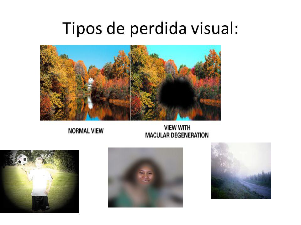 Tipos de perdida visual: