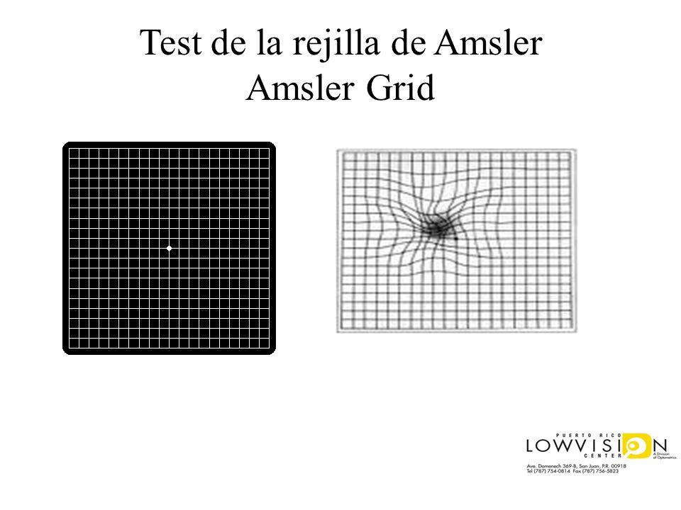 Test de la rejilla de Amsler Amsler Grid