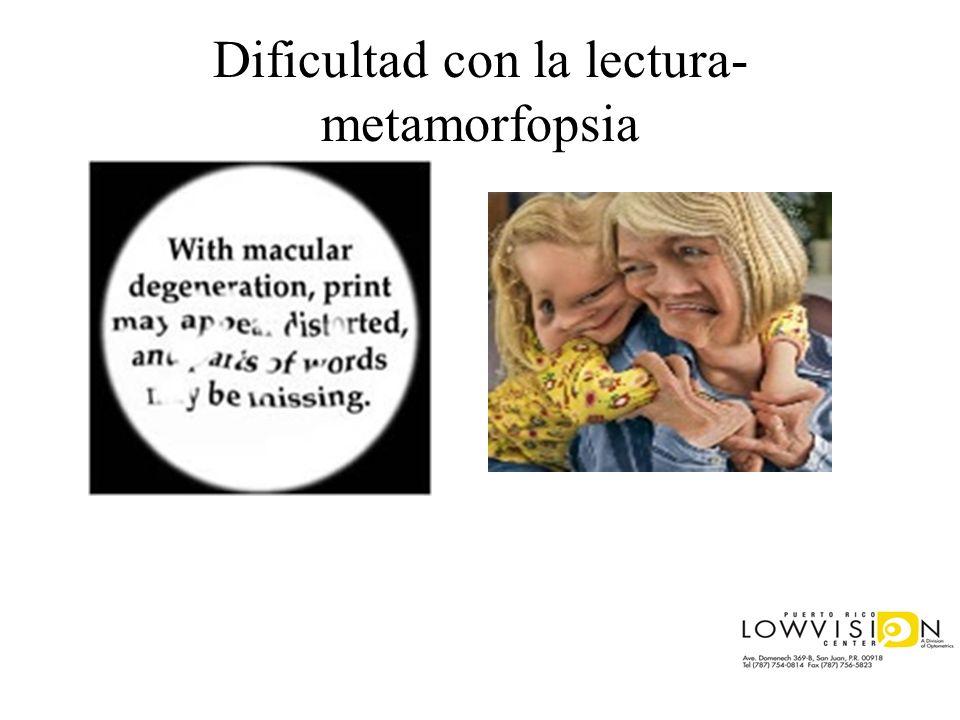 Dificultad con la lectura- metamorfopsia