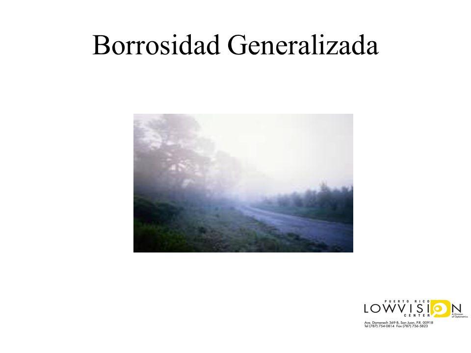 Borrosidad Generalizada