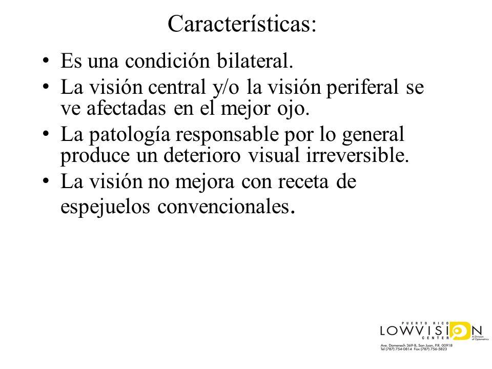 Características: Es una condición bilateral. La visión central y/o la visión periferal se ve afectadas en el mejor ojo. La patología responsable por l