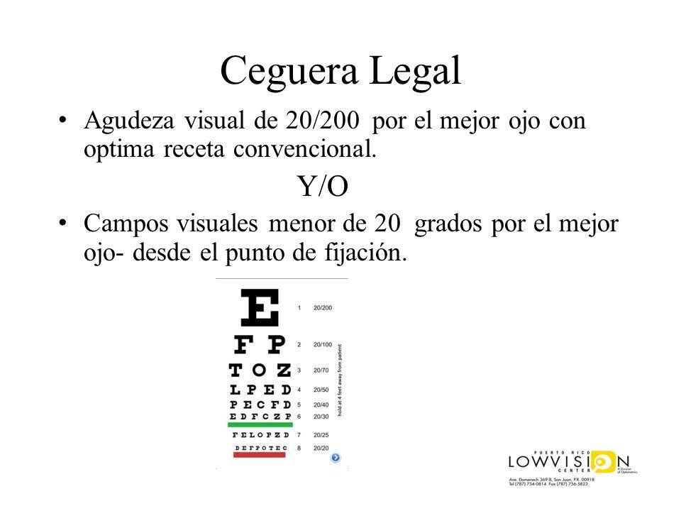 Ceguera Legal Agudeza visual de 20/200 por el mejor ojo con optima receta convencional. Y/O Campos visuales menor de 20 grados por el mejor ojo- desde