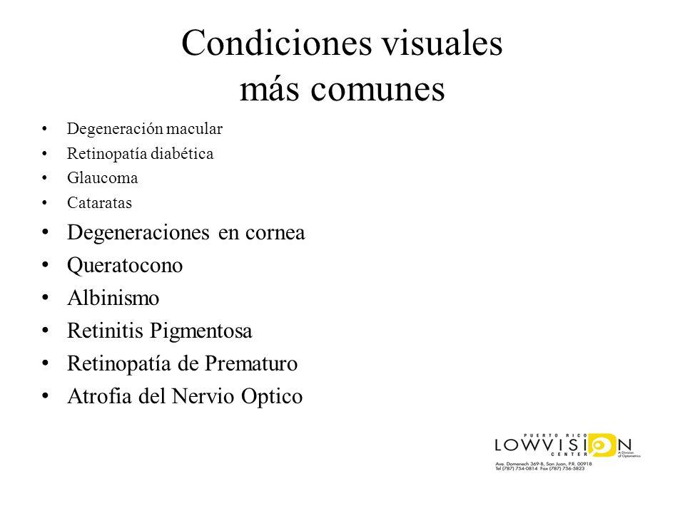 Condiciones visuales más comunes Degeneración macular Retinopatía diabética Glaucoma Cataratas Degeneraciones en cornea Queratocono Albinismo Retiniti