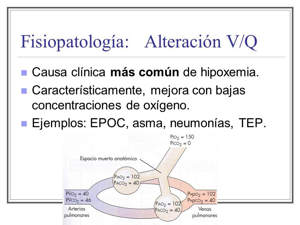 Fisiopatología: Alteración V/Q Causa clínica más común de hipoxemia. Característicamente, mejora con bajas concentraciones de oxígeno. Ejemplos: EPOC,
