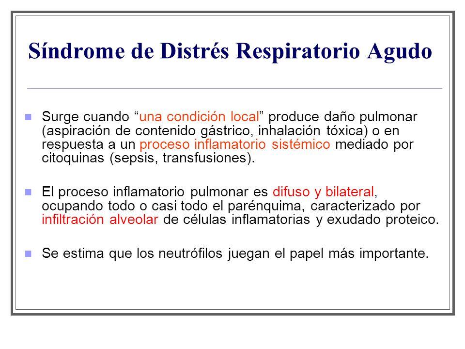 Síndrome de Distrés Respiratorio Agudo Surge cuando una condición local produce daño pulmonar (aspiración de contenido gástrico, inhalación tóxica) o