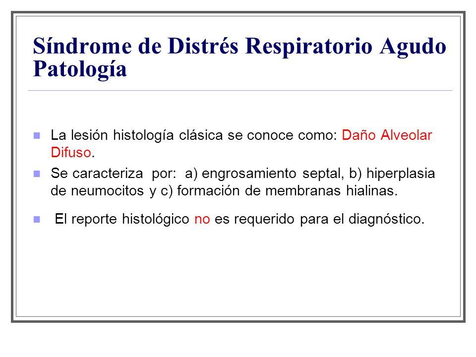 Síndrome de Distrés Respiratorio Agudo Patología La lesión histología clásica se conoce como: Daño Alveolar Difuso. Se caracteriza por: a) engrosamien