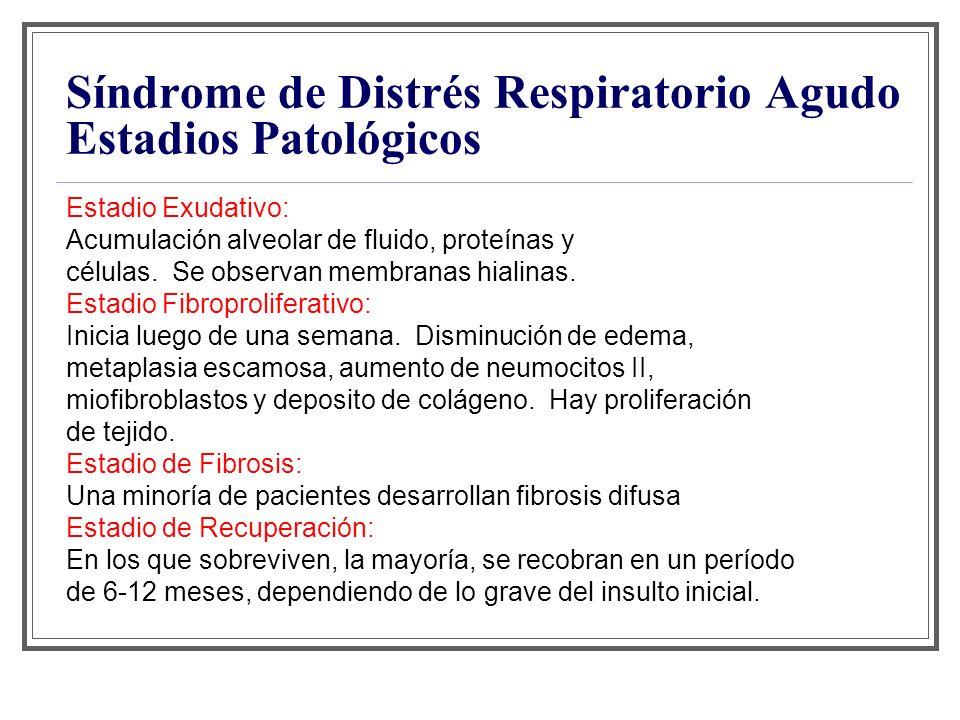 Síndrome de Distrés Respiratorio Agudo Estadios Patológicos Estadio Exudativo: Acumulación alveolar de fluido, proteínas y células. Se observan membra