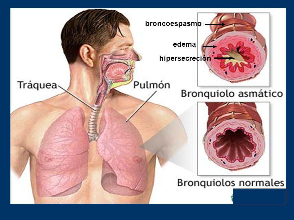 ASMA BRONQUIAL.- Definicion (73 palabras) El asma es una alteración inflamatoria crónica de la vía aérea en la que intervienen muchas células y elemen