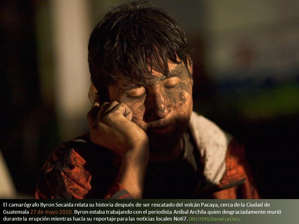 El camarógrafo Byron Secaida relata su historia después de ser rescatado del volcán Pacaya, cerca de la Ciudad de Guatemala 27 de mayo 2010.