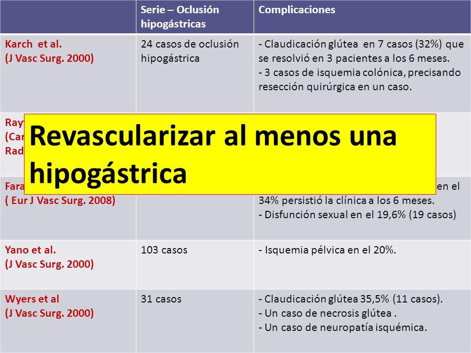 Serie – Oclusión hipogástricas Complicaciones Karch et al. (J Vasc Surg. 2000) 24 casos de oclusión hipogástrica - Claudicación glútea en 7 casos (32%
