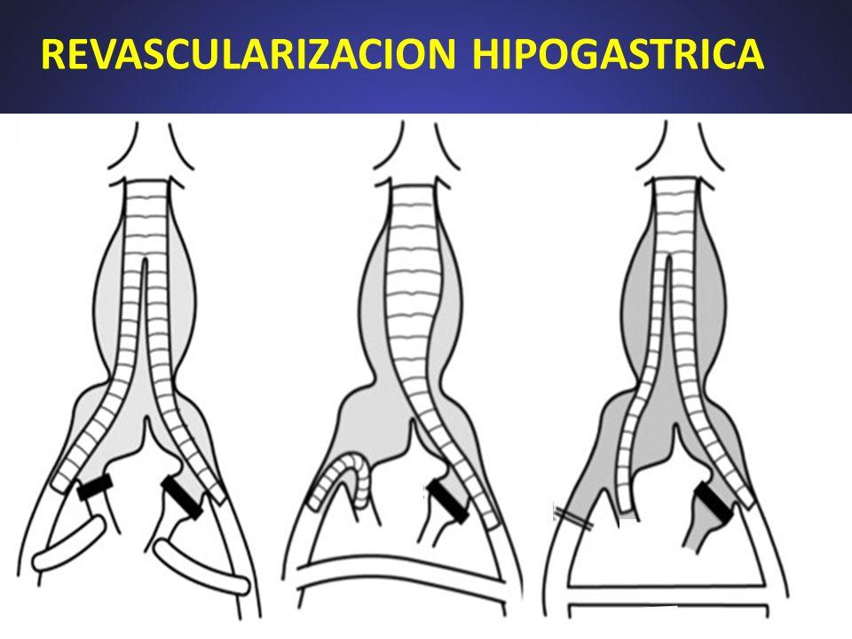 MATERIAL Y METODOS (I) Desde mayo-2010: 4 casos de endoprótesis bifurcada con rama a hipogástrica + emboliz.