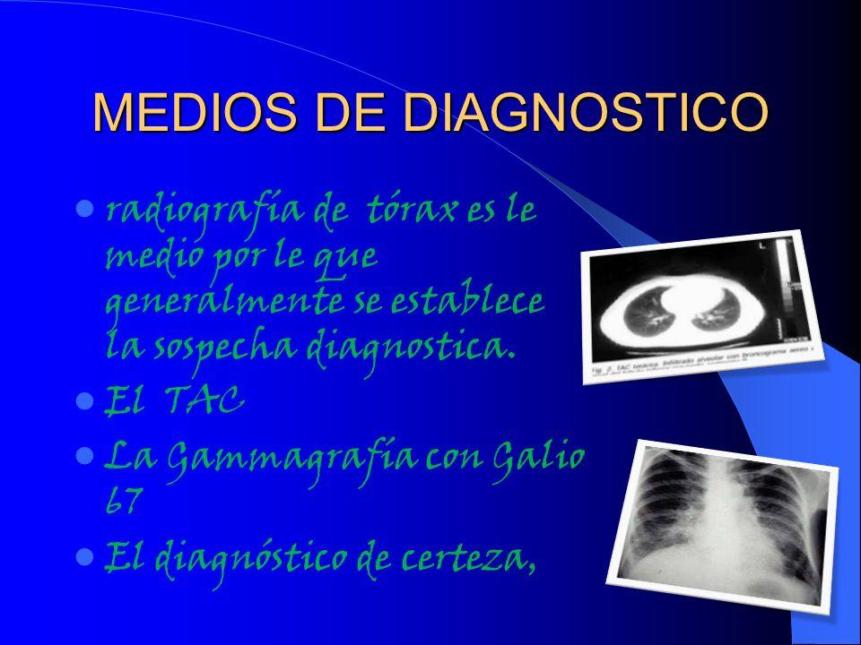 MEDIOS DE DIAGNOSTICO radiografía de tórax es le medio por le que generalmente se establece la sospecha diagnostica. El TAC La Gammagrafía con Galio 6