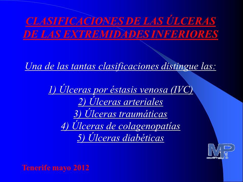 CLASIFICACIONES DE LAS ÚLCERAS DE LAS EXTREMIDADES INFERIORES Una de las tantas clasificaciones distingue las: 1) Úlceras por éstasis venosa (IVC) 2) Úlceras arteriales 3) Úlceras traumáticas 4) Úlceras de colagenopatías 5) Úlceras diabéticas Tenerife mayo 2012