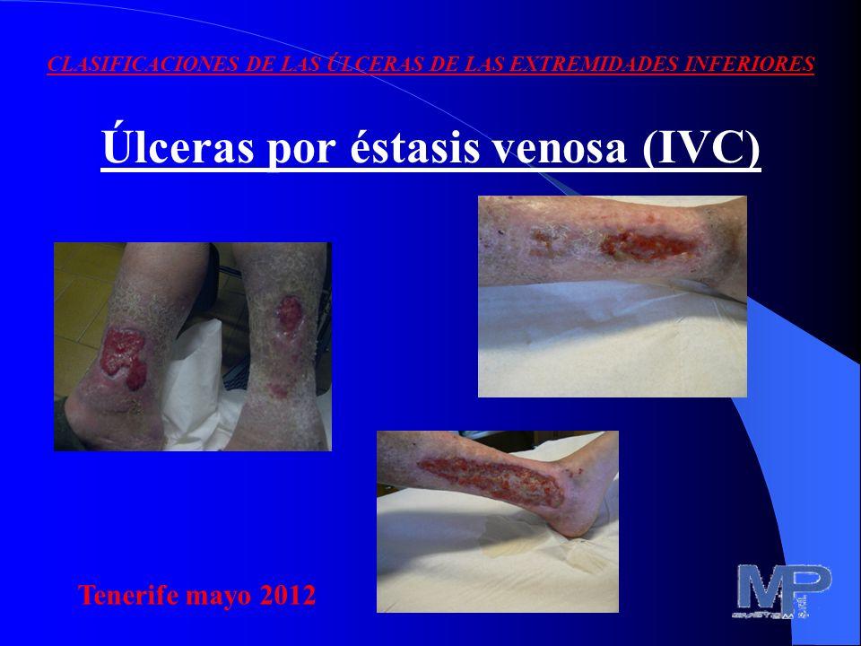 CLASIFICACIONES DE LAS ÚLCERAS DE LAS EXTREMIDADES INFERIORES Una de las tantas clasificaciones distingue las: 1) Úlceras por éstasis venosa (IVC) 2)